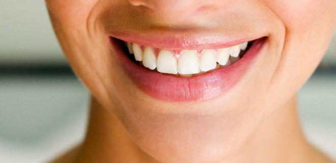 Diş Çürüklerini Önlemenin 10 Yolu
