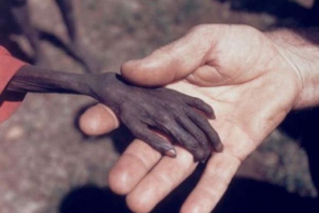 Önceliğin İnsan Olduğu Dünyadan İnsanlık Dramları galerisi resim 1
