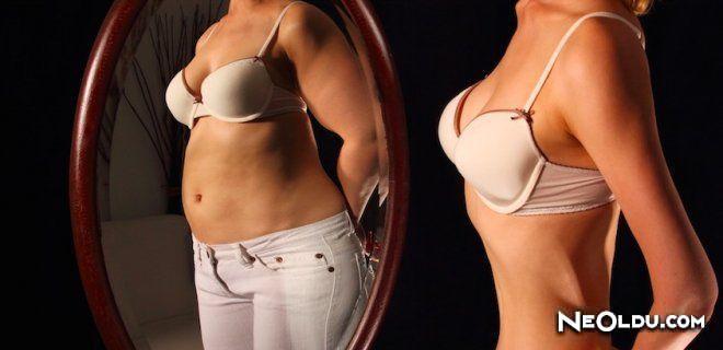 Anoreksiya Nervoza Nedir?