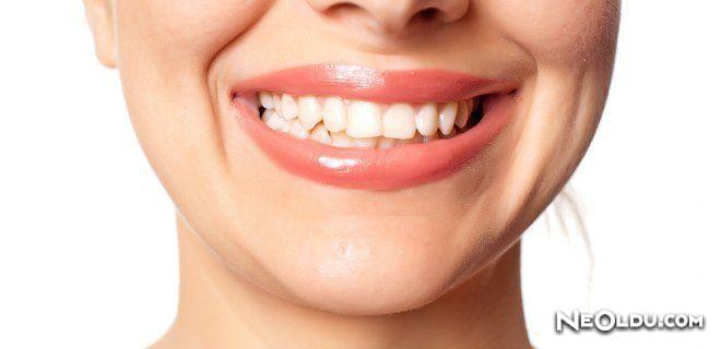 Diş Gıcırdatma Nedenleri ve Tedavisi