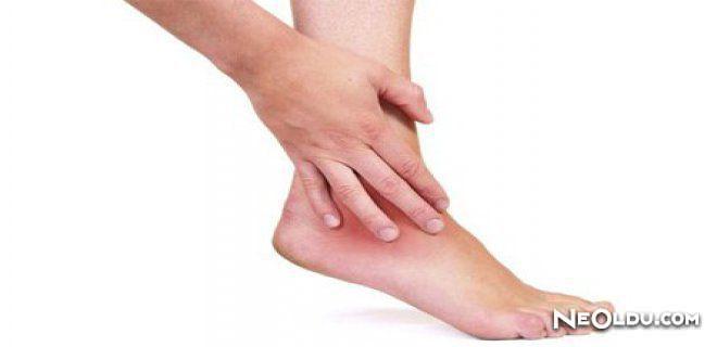 Ayak bileklerinin kırığı: nedenleri, belirtileri ve tedavisi