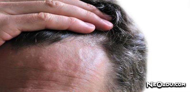 Saç derisinin sebore tedavisi