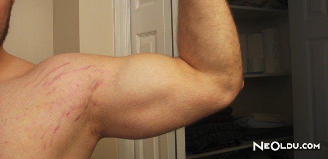 Vücut Geliştirmede Ortaya Çıkan Deri Çatlakları
