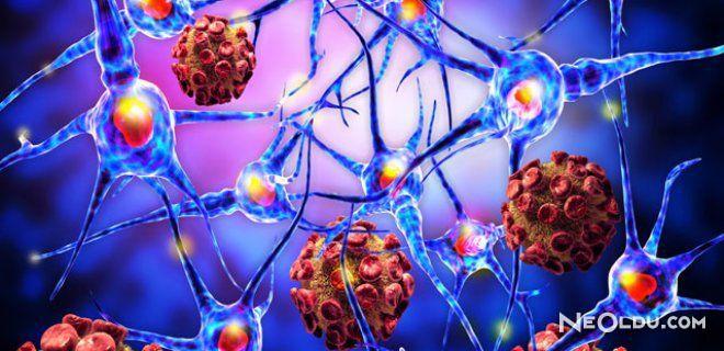 Epilepsi ve Hakkında