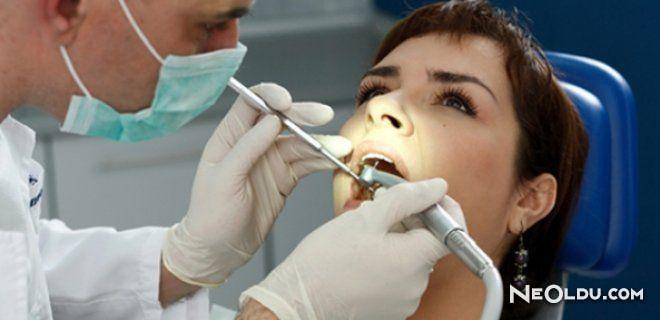 20'lik Diş Ağrıları ve Tedavisi