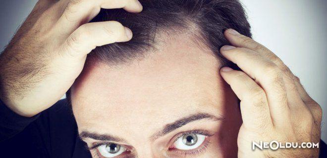 Saç Mezoterapisi Nedir? Nasıl Uygulanır?