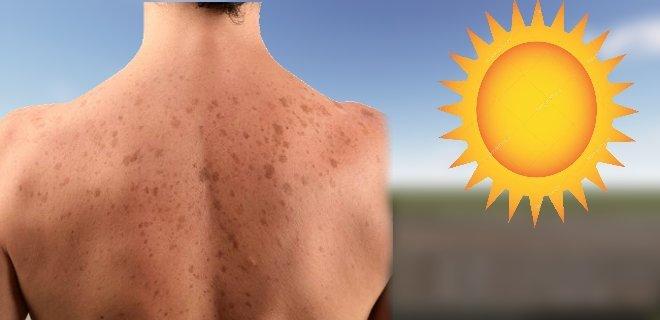 Güneş Lekelerine Evde Uygulanabilecek Doğal Çözümler!