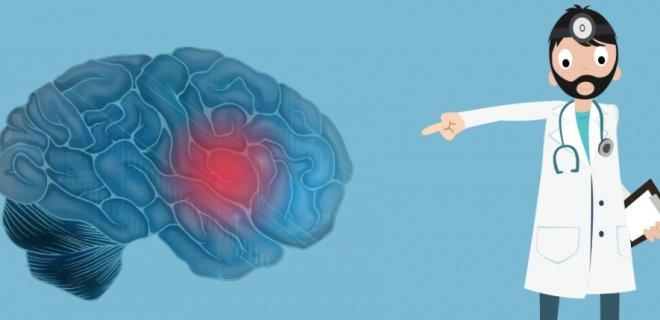 Beyin Tümörü Nedir ve Belirtileri Nelerdir?