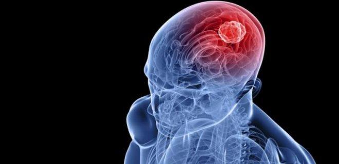 Serebral Damar Hastalıkları Nedir ve Belirtileri Nelerdir?