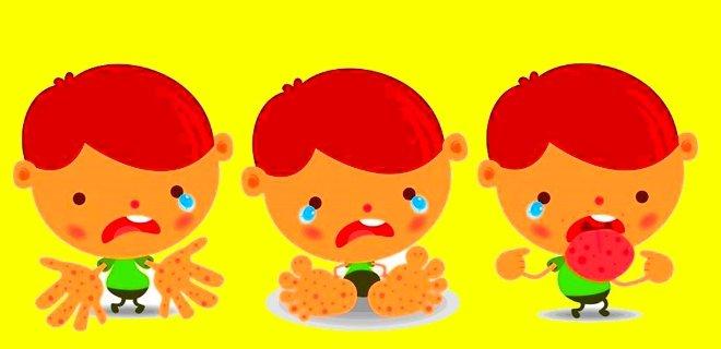 El Ayak Ağız Hastalığı Nedir? Belirtileri ve Tedavisi