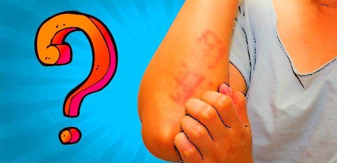 Atopik Dermatit Nedir? Belirtileri ve Tedavisi Hakkında Bilgi