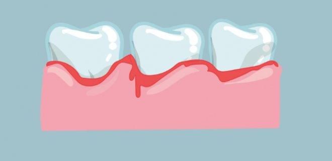 Diş Eti Hastalığı Nedir & Nasıl Tedavi Edilir?