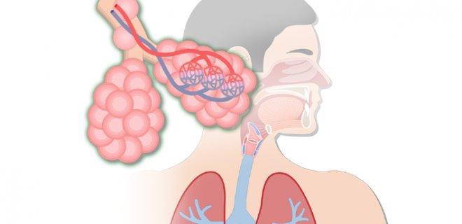 Solunum Yolu Hastalıkları Çeşitleri ve Tedavi Yöntemleri
