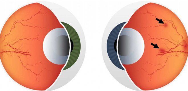Şeker Hastalarında Göz Hastalığı (Diyabetik Retinopati) Nedir?