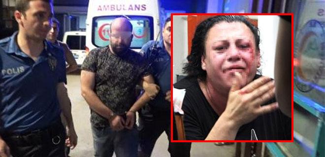 Eskort Sitesinden Tanıştı!Transseksüel Olduğunu Öğrenince Öldüresiye Dövdü!