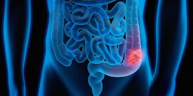 Kalın Bağırsak Kanseri ve Rektum Kanseri Ameliyatı