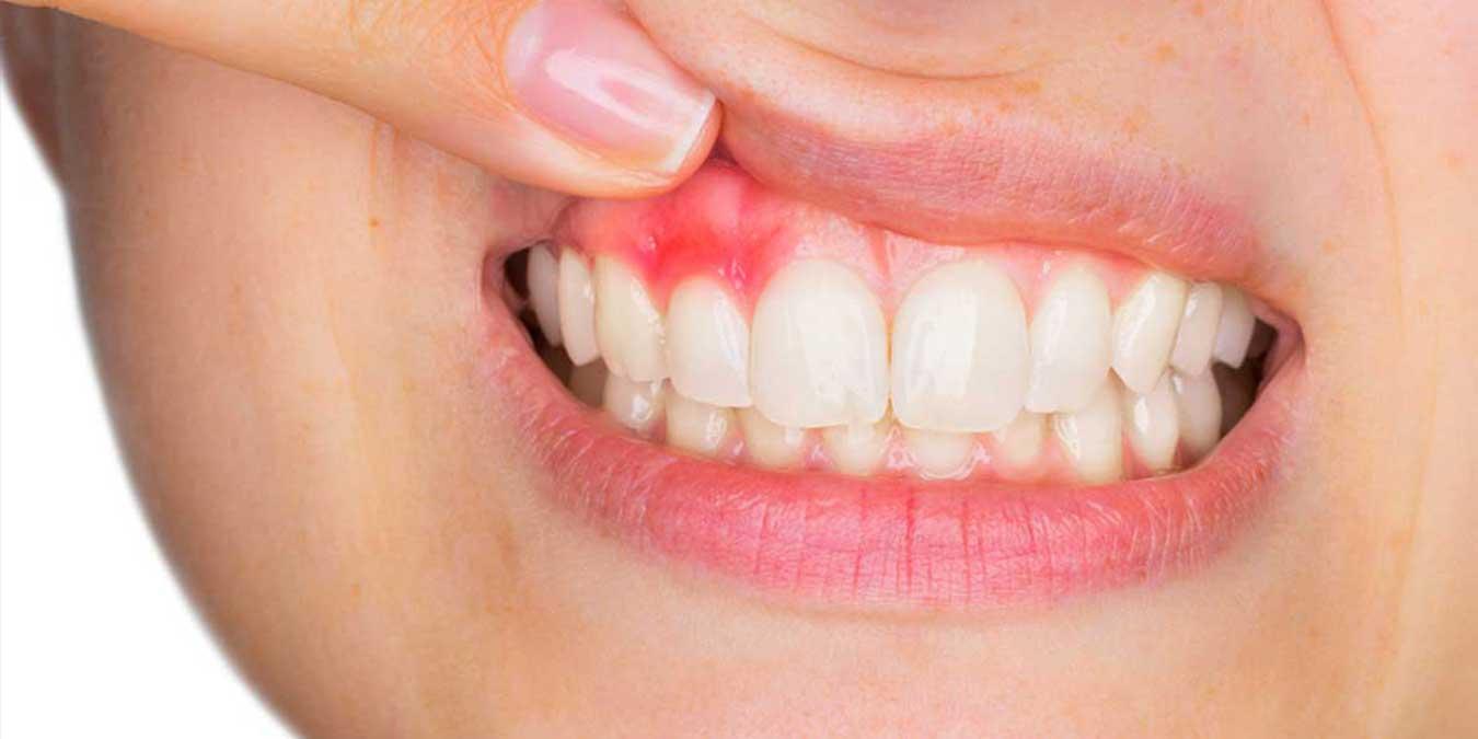 Diş Eti Hastalıklarından Kurtulmanın Yolları Nelerdir? Diş Eti Ağrılarına Hızlı ve Doğam Çözümler