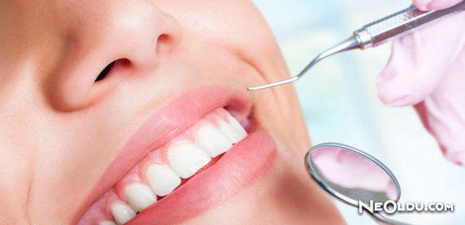 Diş Apsesi Nedir ve Nasıl Tedavi Edilir?