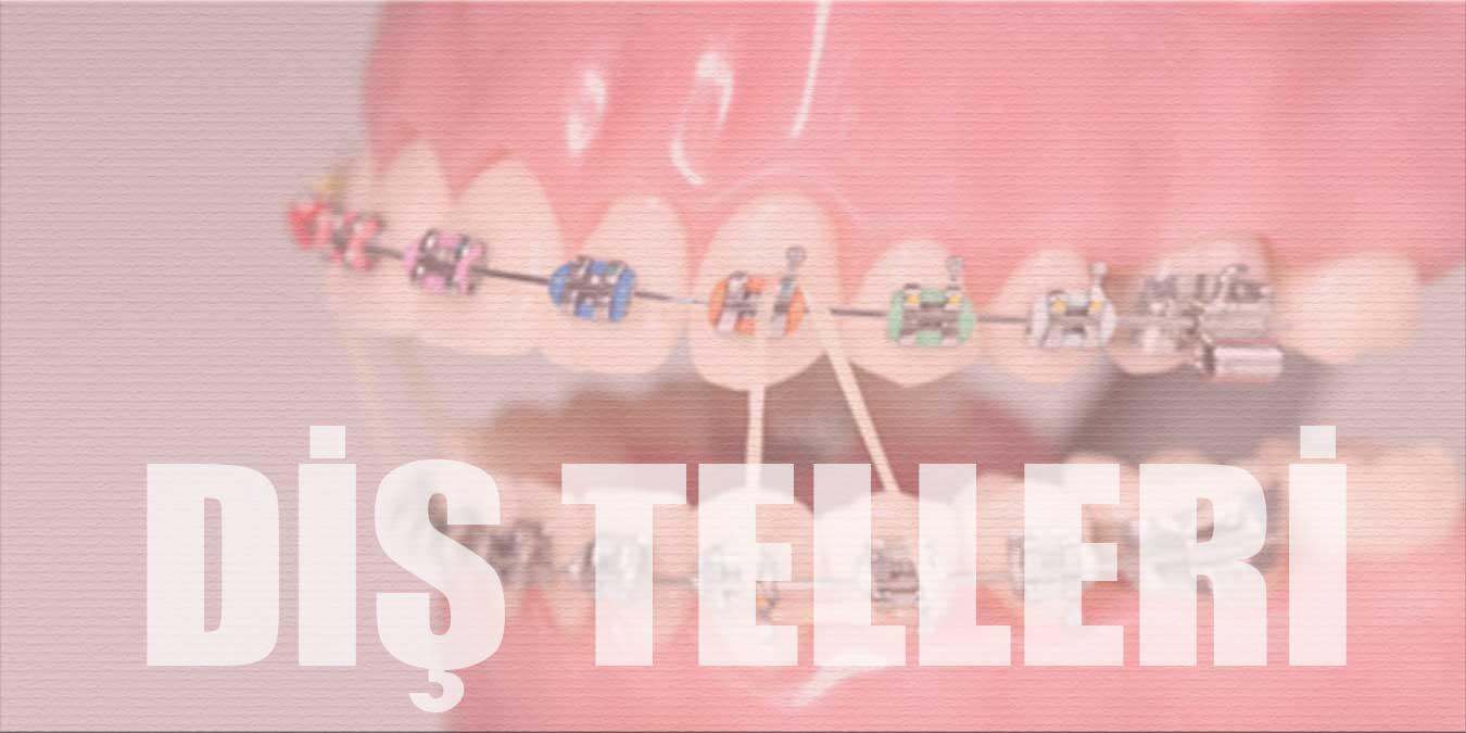 Diş Telleri Hakkında Bilinmesi Gerekenler ve Merak Edilen Sorular