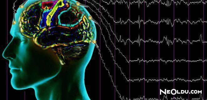 Epilepsi Belirtileri ve Tedavisi