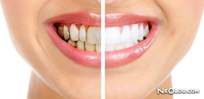 Dişlerinizin Çürümesini Nasıl Engelleyebilirsiniz?