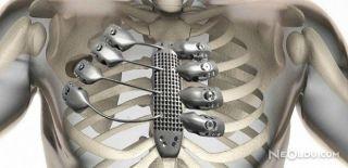 3D Yazıcı İle Göğüs Kemiği Üretildi