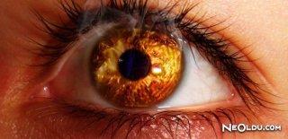Göz Yanması Neden Olur ve Nasıl Tedavi Edilir?