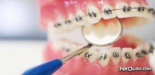 Ortodonti Tedavi Nedir?