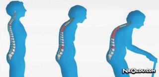 Osteoporoz Nedir? Belirtileri Nelerdir?