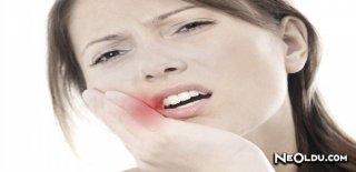 Diş Apsesi Nedenleri ve Tedavi Yöntemleri