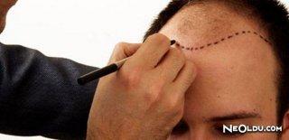 Saç Ekiminde Dikkat Edilmesi Gereken Konular