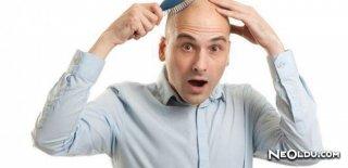 Saç Dökülmesini Engelleme & Doğal ve Tıbbi Öneriler