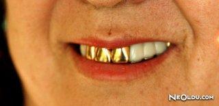 Rüyada Altın Diş Görmek Ne Anlama Gelir?