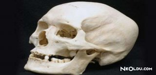 Rüyada Kafatası Görmek Ne Anlama Gelir?