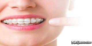 Porselen Diş Teli (Şeffaf Diş Teli)