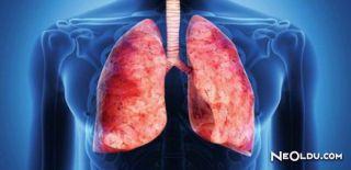 Falda Akciğer Görmek Ne Anlama Gelir