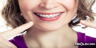 Yetişkinlerde Ortodonti Tedavi