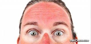Güneş Yanığı Nedir ve Nasıl Geçer?