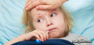 El Ayak Ağız Sendromu Hakkında Bilinmesi Gerekenler