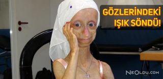 Erken Yaşlanma Hastası Gamze Hayatını Kaybetti