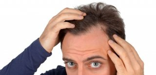 Traşsız Saç Ekimi Nedir ve Nasıl Yapılır?