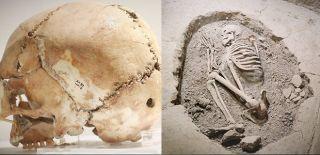 Aşıklıhöyük'te 11 Bin Yıl Önce İlk Beyin Ameliyatı Yapıldı
