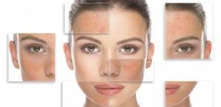 Yağlı ve Nemli Yüzler İçin 5 Doğal Çözüm