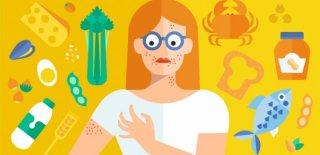 İnsanların Hayatlarına Mal Olabilecek 7 Tehlikeli Alerji
