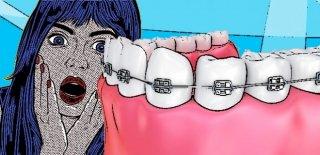 Diş Teli Takanlar İçin Ağız Bakım Önerileri