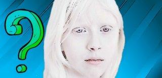 Albinizm Hastalığı Nedir? Albinizm Hakkında Bilgi