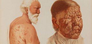 Cüzzam (Lepra) Hastalığı Nedir ve Nasıl Tedavi Edilir?