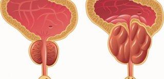 Prostat Kanseri Belirtileri ve Tedavi Yöntemleri