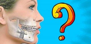 Çene Eklemi Rahatsızlığı Nedir? Belirtileri ve Tedavi Yöntemleri