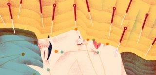 Akupunktur Tedavisi Hakkında Bilinmesi Gerekenler